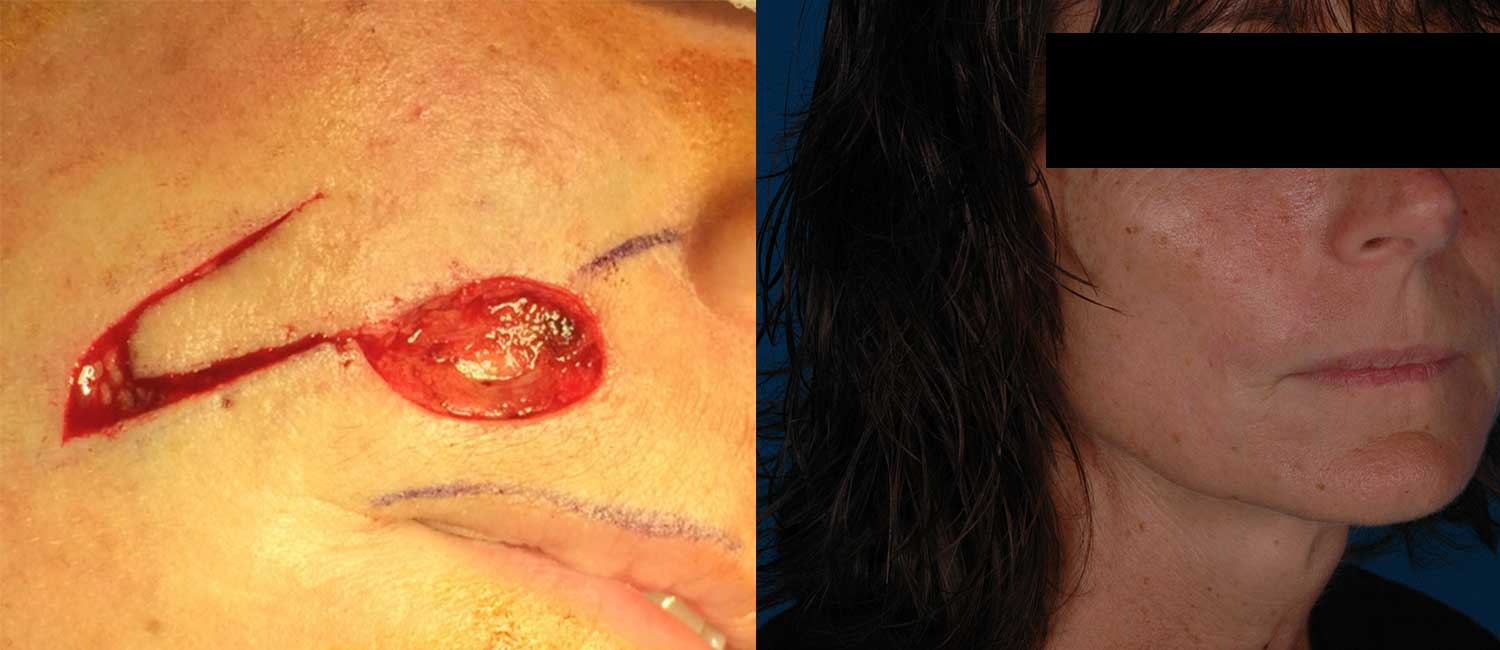Facial-Reconstruction-after-Skin-Cancer-Excision