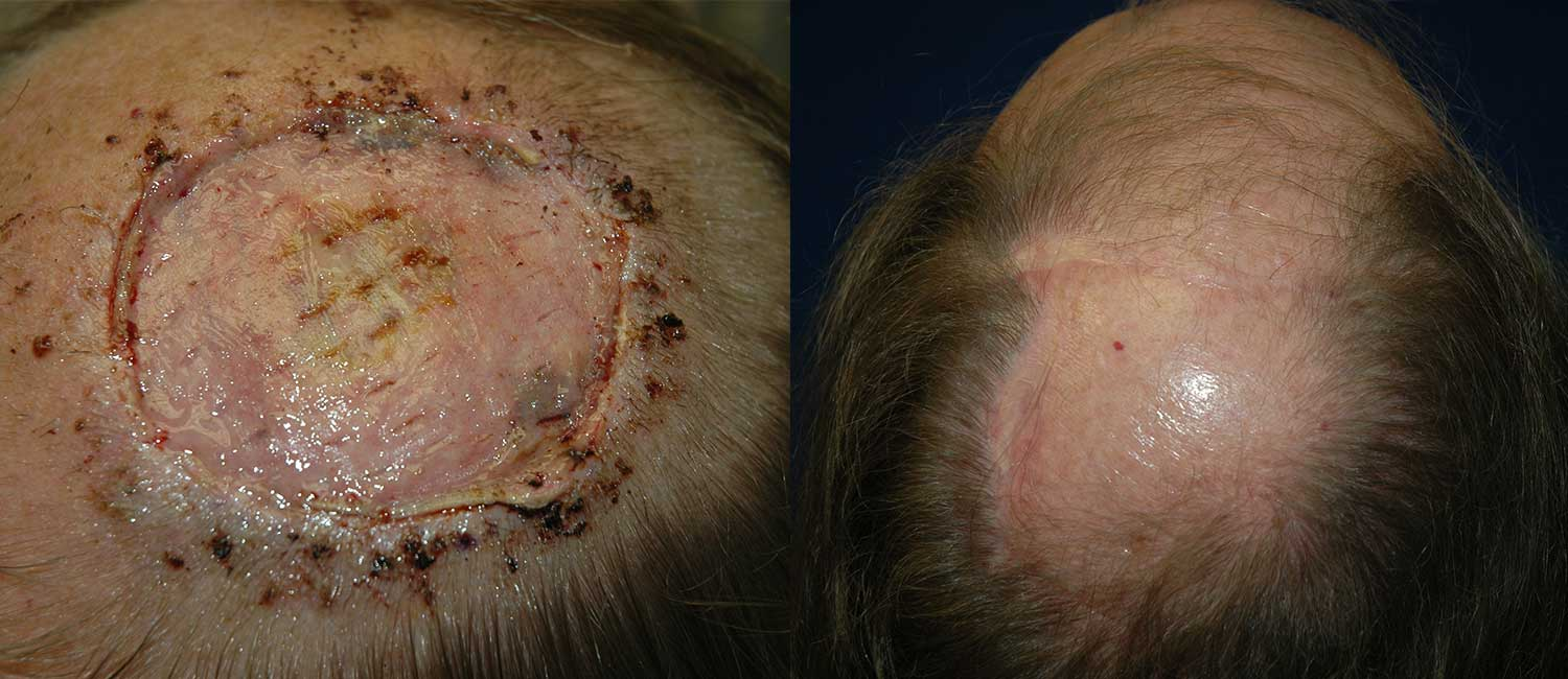 Scalp-Reconstruction-with-Tissue-Expanders