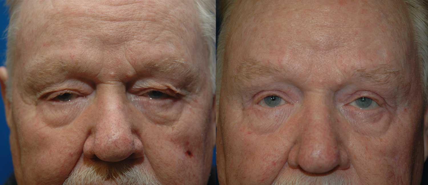 Bilateral Upper Blepharoplasty with Brow Lift