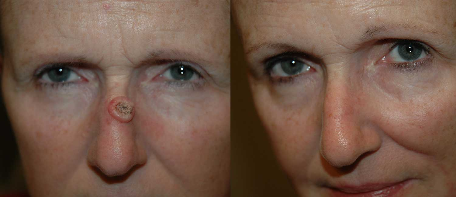 Nasal Reconstruction After Skin Cancer Excision