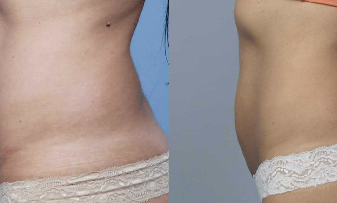 Here's What You Need to Know Before Getting a BodyTite Procedure or BodyFX Treatment