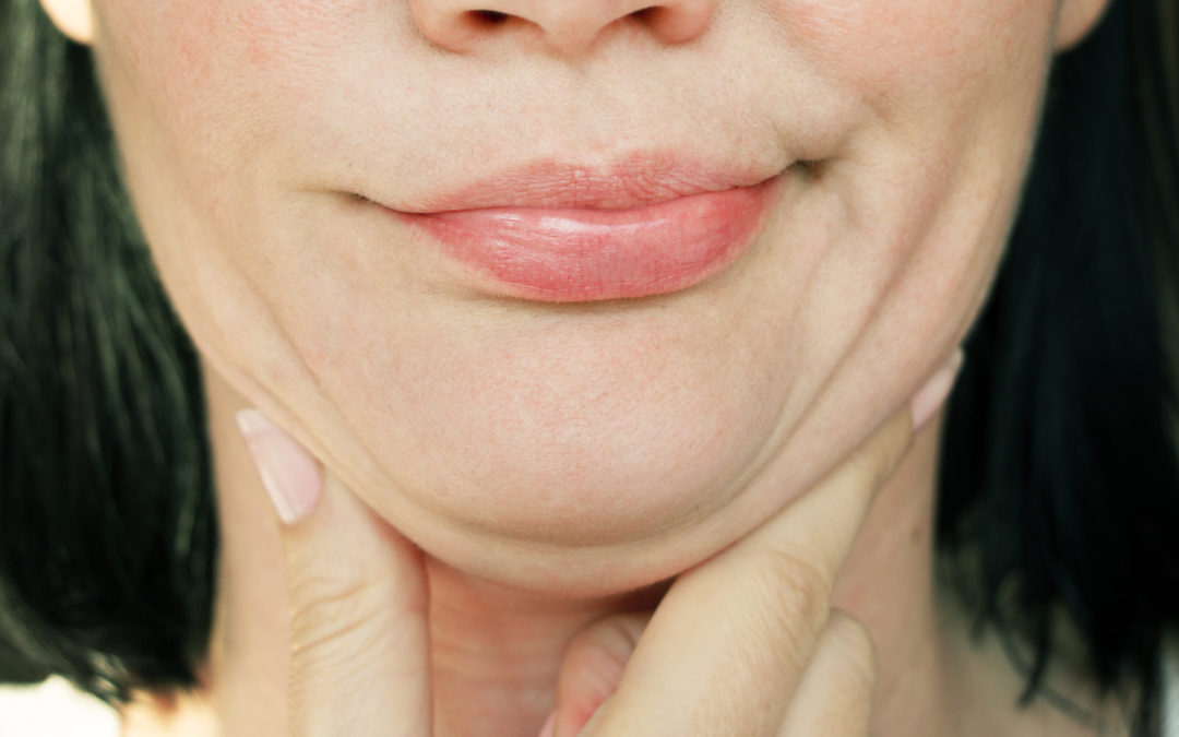 Learn About Available Plastic Surgery Double Chin Procedures