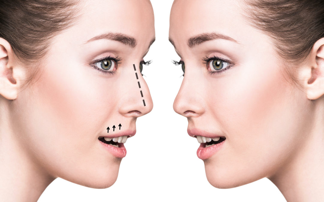 Why Is a Non-Surgical Nose Job Considered Underrated?
