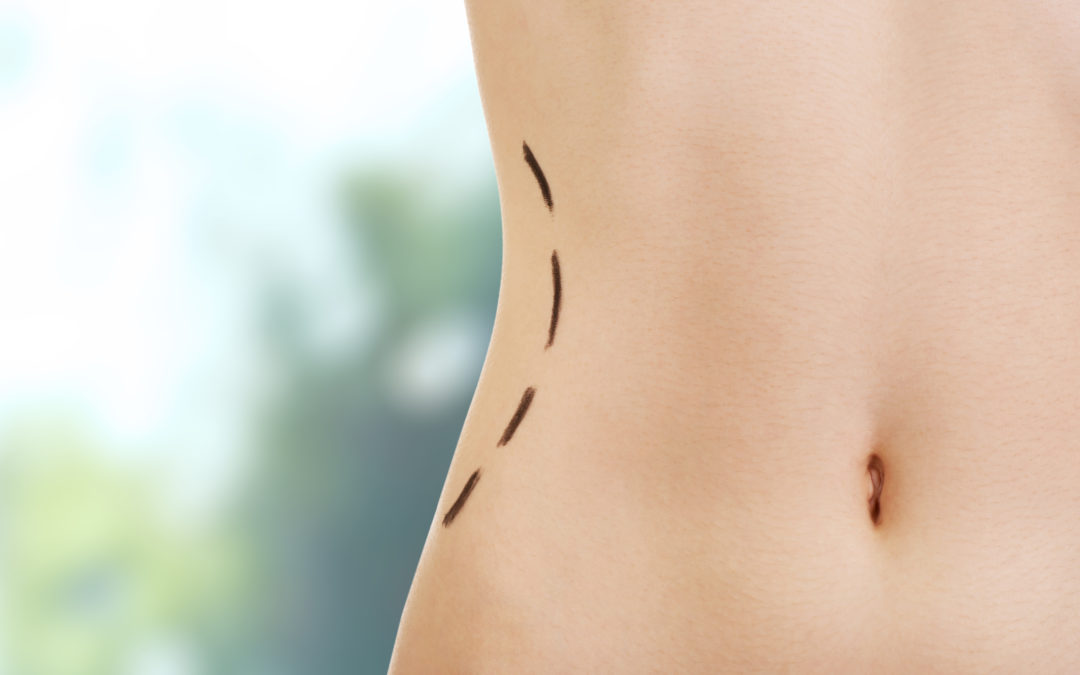 All You Need To Know About Body FX Contouring