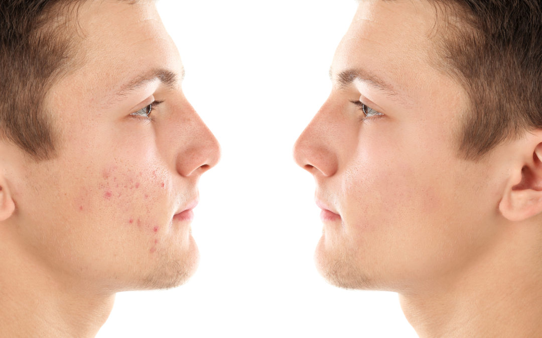 What To Do About Acne Scarring