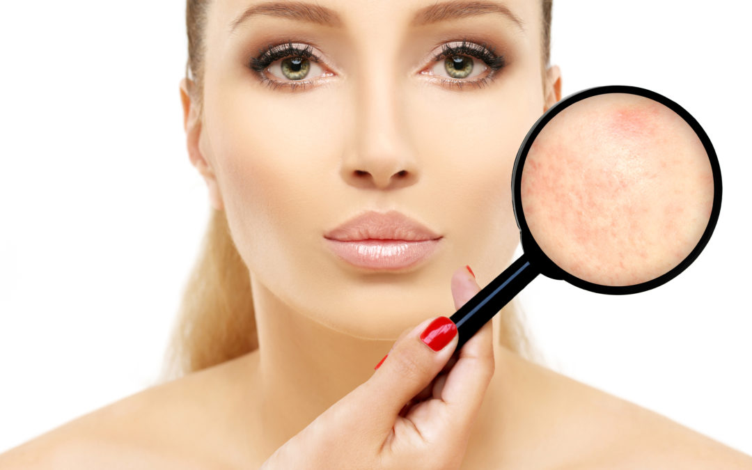 Three Acne Scarring Removal Procedures Aimed to Please