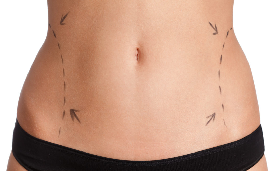 Which One of These Five Body Contouring Procedures Is Best for You?