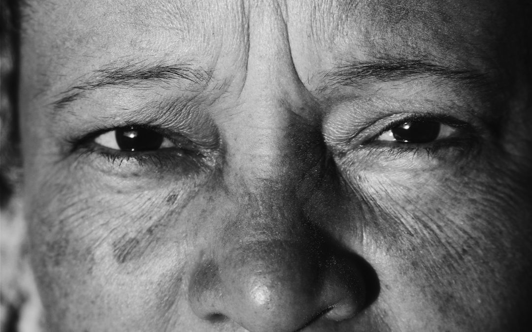 Wrinkles: When Worry Shows Up On Your Face